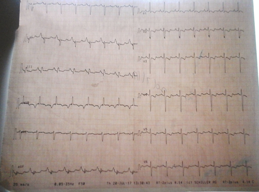 Figure 2: Showing electrocardiograph of the patient with sinus rhythm, right atrial abnormality and biventricular hypertrophy. (speed -25mm/sec, amplitude-5mm/mV)